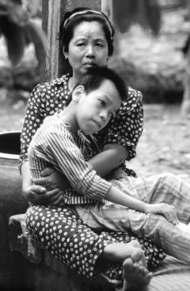 Vietnamese Agent Orange Victims